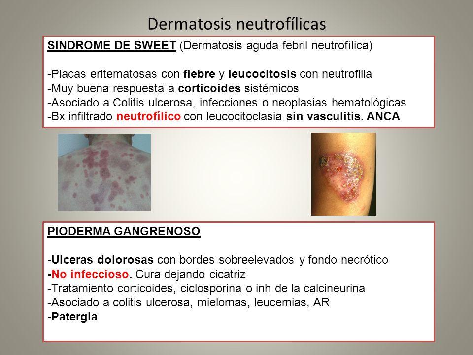 Dermatosis neutrofílicas SINDROME DE SWEET (Dermatosis aguda febril neutrofílica) -Placas eritematosas con fiebre y leucocitosis con neutrofilia -Muy