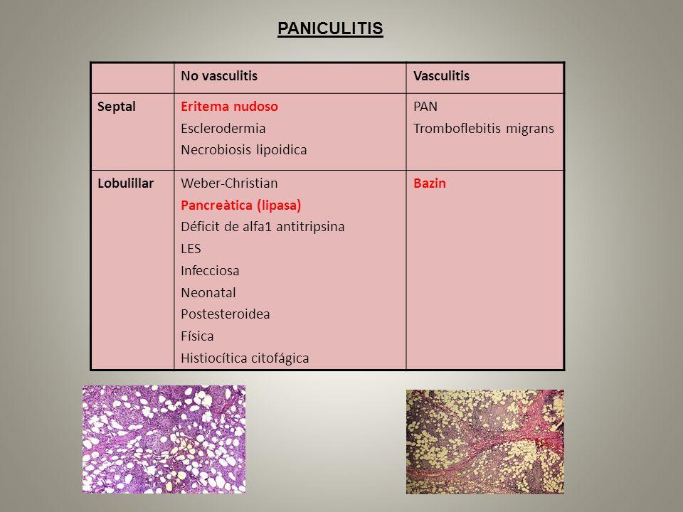 No vasculitisVasculitis SeptalEritema nudoso Esclerodermia Necrobiosis lipoidica PAN Tromboflebitis migrans LobulillarWeber-Christian Pancreàtica (lip