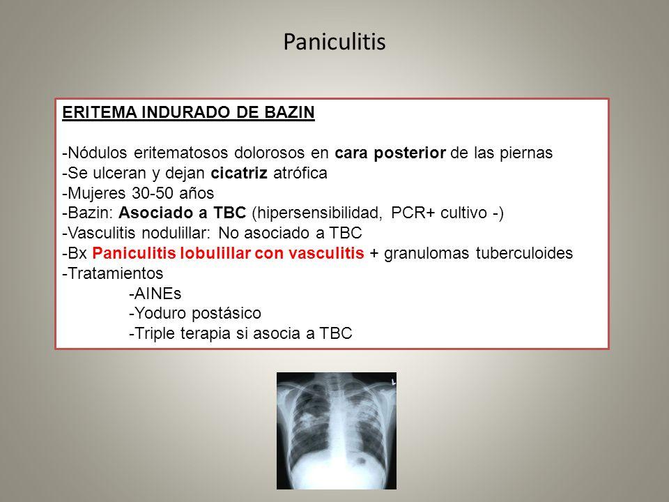 Paniculitis ERITEMA INDURADO DE BAZIN -Nódulos eritematosos dolorosos en cara posterior de las piernas -Se ulceran y dejan cicatriz atrófica -Mujeres