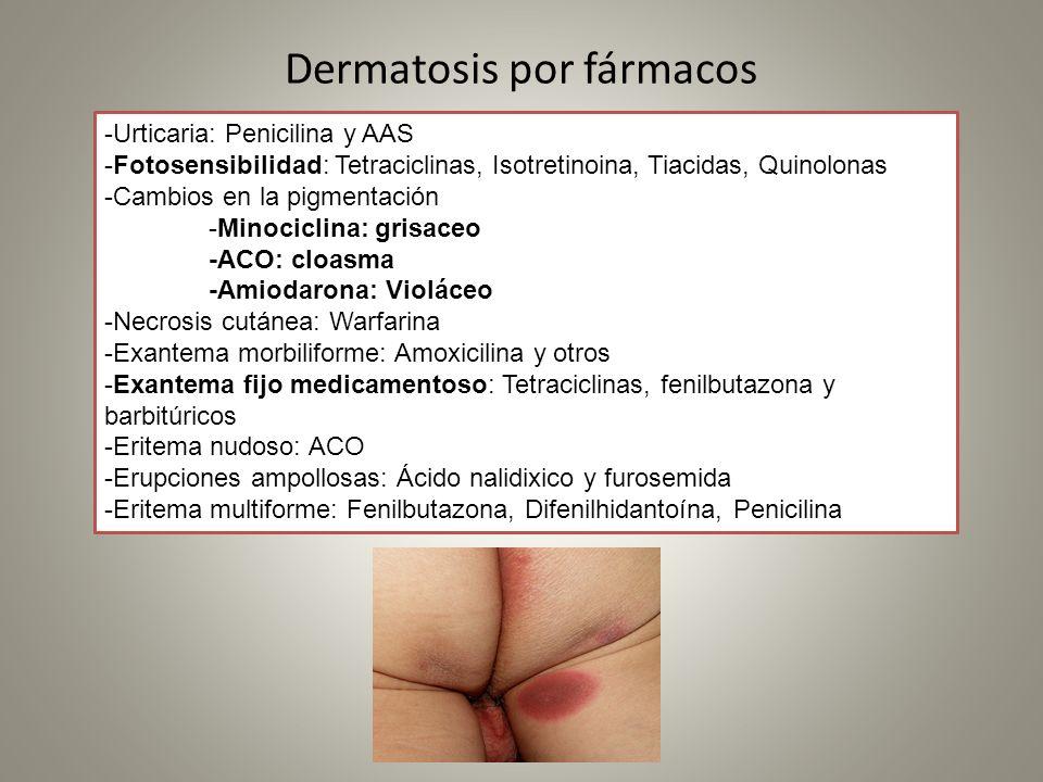 Dermatosis por fármacos -Urticaria: Penicilina y AAS -Fotosensibilidad: Tetraciclinas, Isotretinoina, Tiacidas, Quinolonas -Cambios en la pigmentación