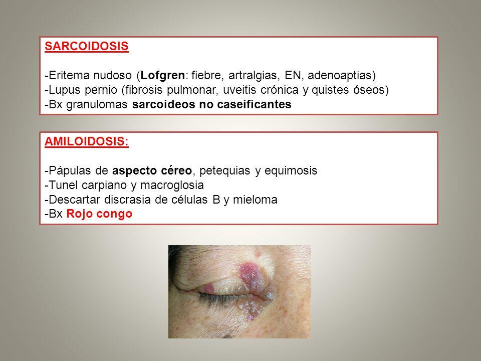 SARCOIDOSIS -Eritema nudoso (Lofgren: fiebre, artralgias, EN, adenoaptias) -Lupus pernio (fibrosis pulmonar, uveitis crónica y quistes óseos) -Bx gran