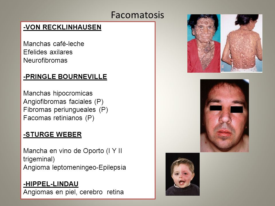 Facomatosis -VON RECKLINHAUSEN Manchas café-leche Efelides axilares Neurofibromas -PRINGLE BOURNEVILLE Manchas hipocromicas Angiofibromas faciales (P)