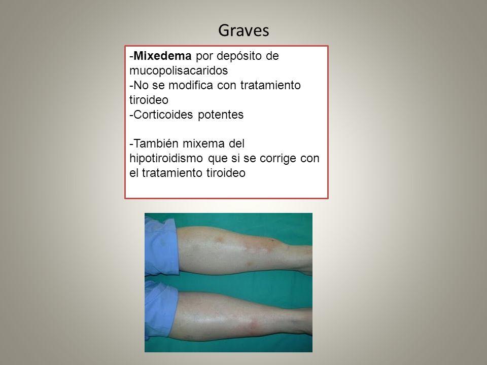Graves -Mixedema por depósito de mucopolisacaridos -No se modifica con tratamiento tiroideo -Corticoides potentes -También mixema del hipotiroidismo q