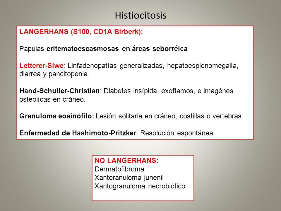 Histiocitosis LANGERHANS (S100, CD1A Birberk): Pápulas eritematoescasmosas en áreas seborréica Letterer-Siwe: Linfadenopatías generalizadas, hepatoesp