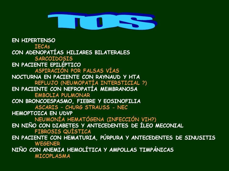 CALAMBRES AL FLEXIONAR EL CUELLO SIGNO DE LHERMITTE (EM – DCSA….) CON PARAPARESIA Y FIEBRE TRAS INFECCIÓN CUTÁNEA ABSCESO EPIDURAL ESPINAL EN PACIENTE