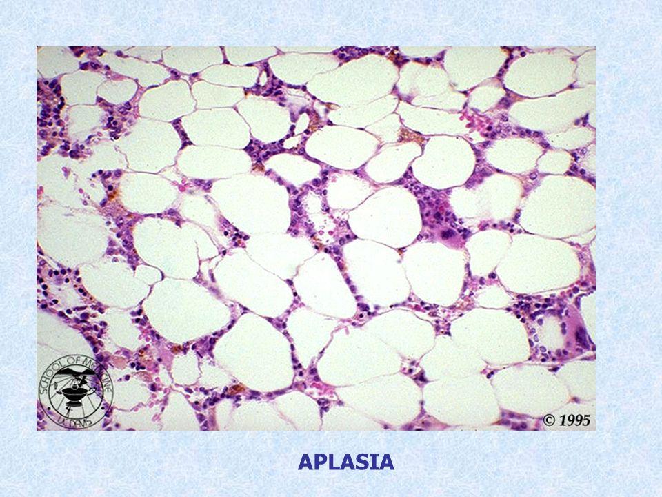 Paciente con astenia, cefalea, angina necrótica y epístaxis.