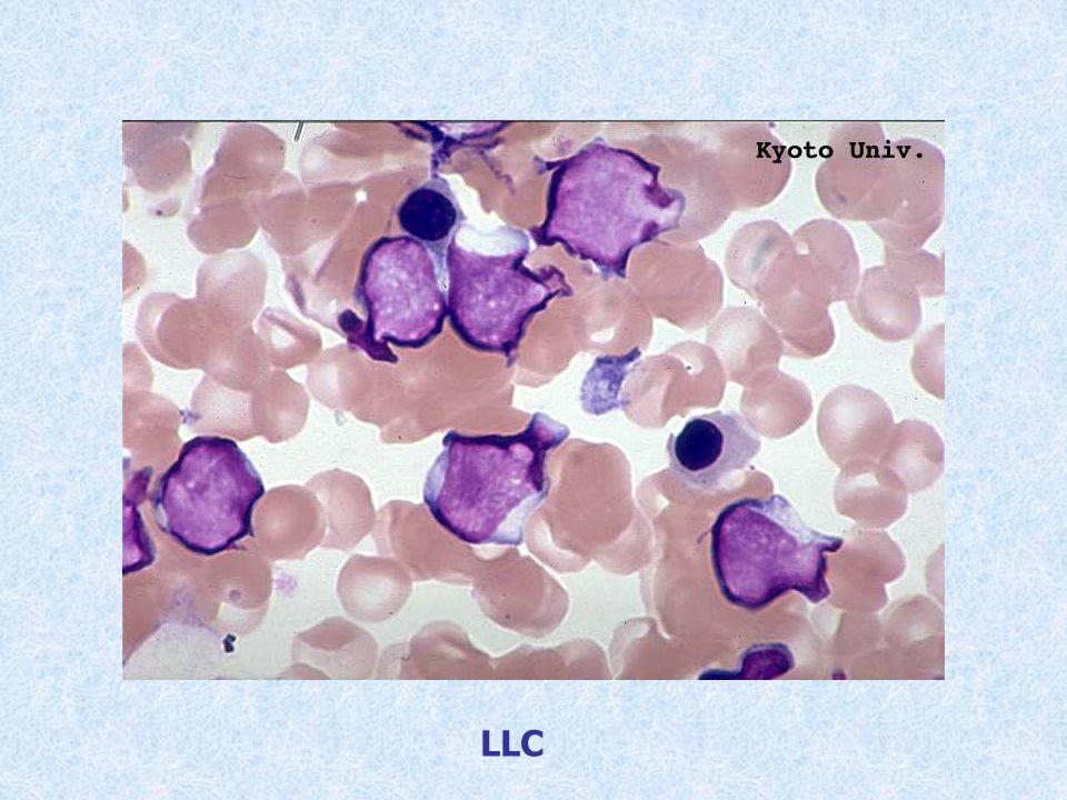 Paciente con adenopatías y linfocitosis en sangre periférica con trisomía 12, CD5, CD19 y CD20.