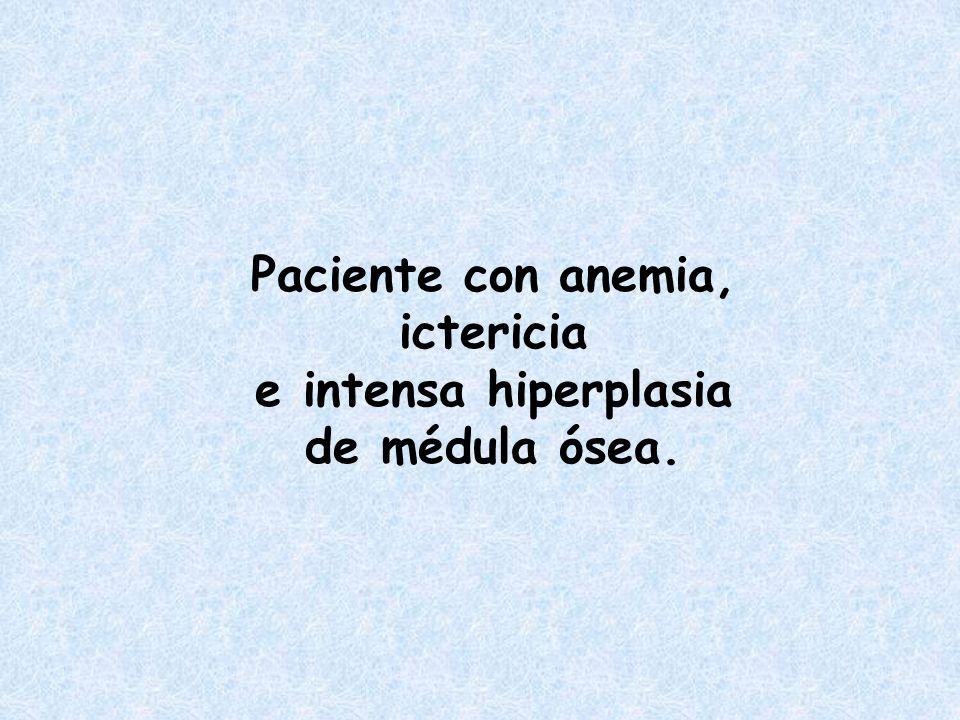 Paciente de 80 años con anemia macrocitica y B12 normal.