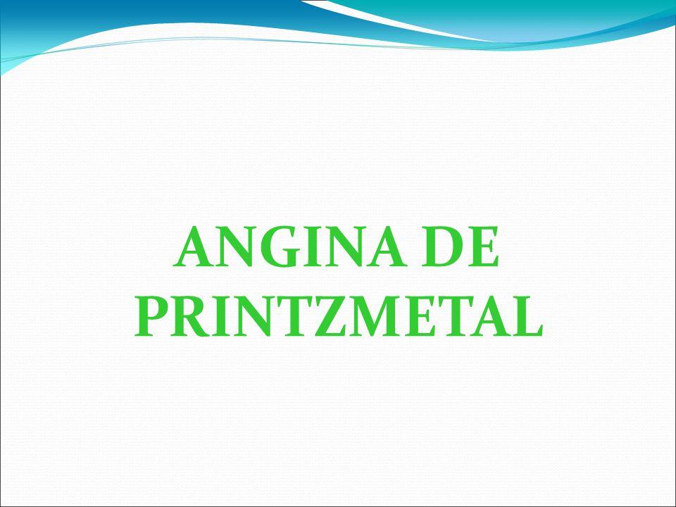 ANGINA DE PRINTZMETAL