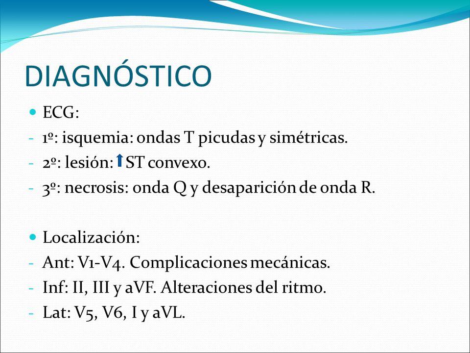DIAGNÓSTICO ECG: - 1º: isquemia: ondas T picudas y simétricas. - 2º: lesión: ST convexo. - 3º: necrosis: onda Q y desaparición de onda R. Localización