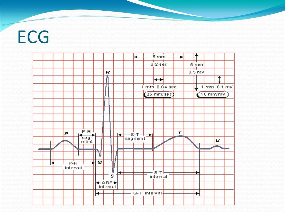 Onda T: Positiva (isoeléctrica): isquemia subendocárdica.