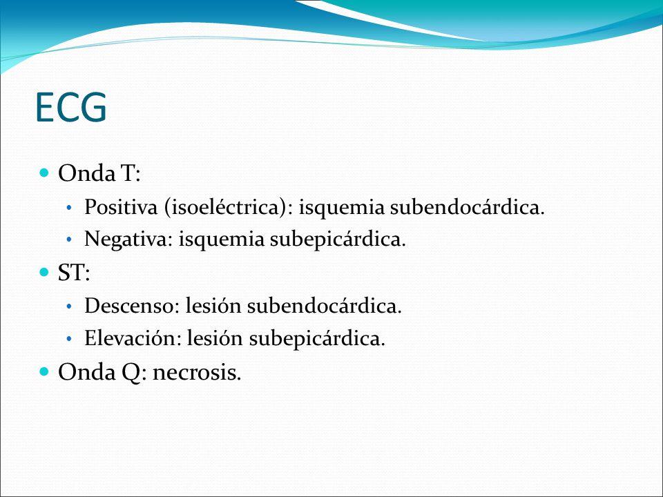 Onda T: Positiva (isoeléctrica): isquemia subendocárdica. Negativa: isquemia subepicárdica. ST: Descenso: lesión subendocárdica. Elevación: lesión sub