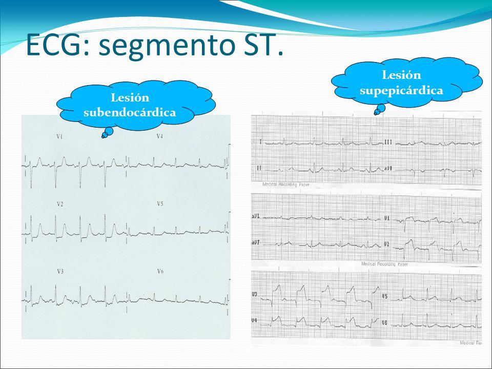 ECG: onda Q.- >0.04 mseg. - Profunda. - >1/4 de la siguiente R.