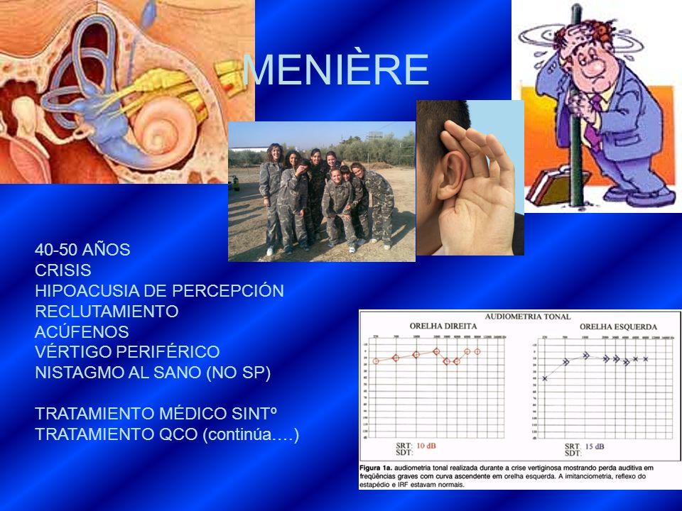 MENIÈRE 40-50 AÑOS CRISIS HIPOACUSIA DE PERCEPCIÓN RECLUTAMIENTO ACÚFENOS VÉRTIGO PERIFÉRICO NISTAGMO AL SANO (NO SP) TRATAMIENTO MÉDICO SINTº TRATAMI