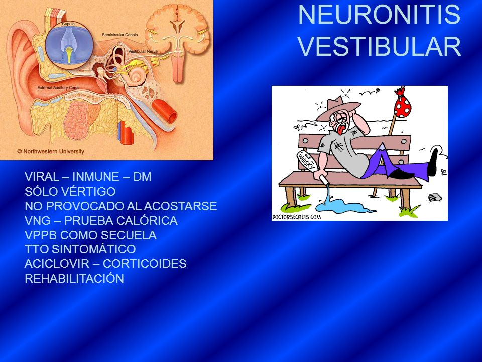 NEURONITIS VESTIBULAR VIRAL – INMUNE – DM SÓLO VÉRTIGO NO PROVOCADO AL ACOSTARSE VNG – PRUEBA CALÓRICA VPPB COMO SECUELA TTO SINTOMÁTICO ACICLOVIR – C