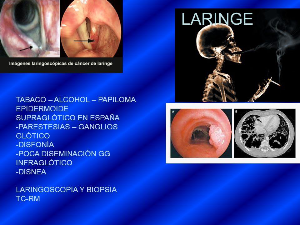 LARINGE TABACO – ALCOHOL – PAPILOMA EPIDERMOIDE SUPRAGLÓTICO EN ESPAÑA -PARESTESIAS – GANGLIOS GLÓTICO -DISFONÍA -POCA DISEMINACIÓN GG INFRAGLÓTICO -D