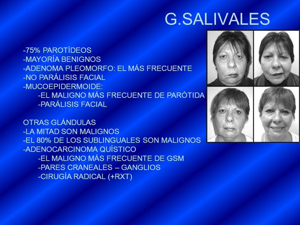 G.SALIVALES -75% PAROTÍDEOS -MAYORÍA BENIGNOS -ADENOMA PLEOMORFO: EL MÁS FRECUENTE -NO PARÁLISIS FACIAL -MUCOEPIDERMOIDE: -EL MALIGNO MÁS FRECUENTE DE