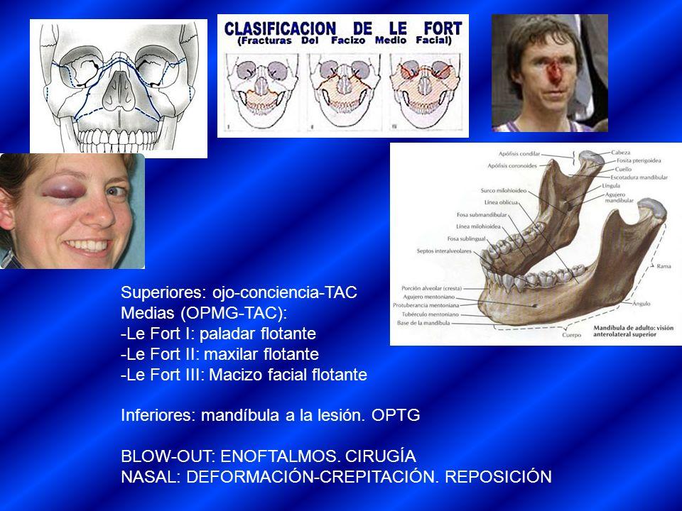 Superiores: ojo-conciencia-TAC Medias (OPMG-TAC): -Le Fort I: paladar flotante -Le Fort II: maxilar flotante -Le Fort III: Macizo facial flotante Infe
