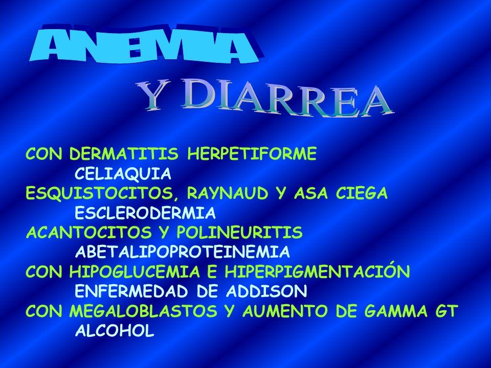 CON DOLOR ABDOMINAL Y LIVEDO RETICULARIS POLIARTERITIS NODOSA CON POLICITEMIA Y HEMORRAGIA SUBARACNOIDEA POLIQUISTOSIS RENAL EN EMBARAZADA TOXEMIA GRA