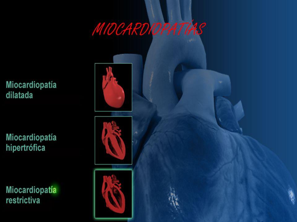 c) DIAGNÓSTICO EF: –Protodiástole CONSERVADA (como en PC y a diferencia de Taponamiento Cardiaco (Pandiástole)) En curva de P Diastólica intraV observamos DIP-PLATEAU o SIGNO DE LA RAÍZ CUADRADA –Pulso Venoso Yugular: Signo de W como en PC (senos X e Y profundos) –Signo de Kussmaul (PVC en inspiración aumenta): algo menos que en PC –Puede haber Pulso Paradójico (disminución de > 10 mmHg de TAs en inspiración): menos que en Taponamiento –AC: Tonos Cardiacos apagados … MIOCARDIOPATÍA RESTRICTIVA M R