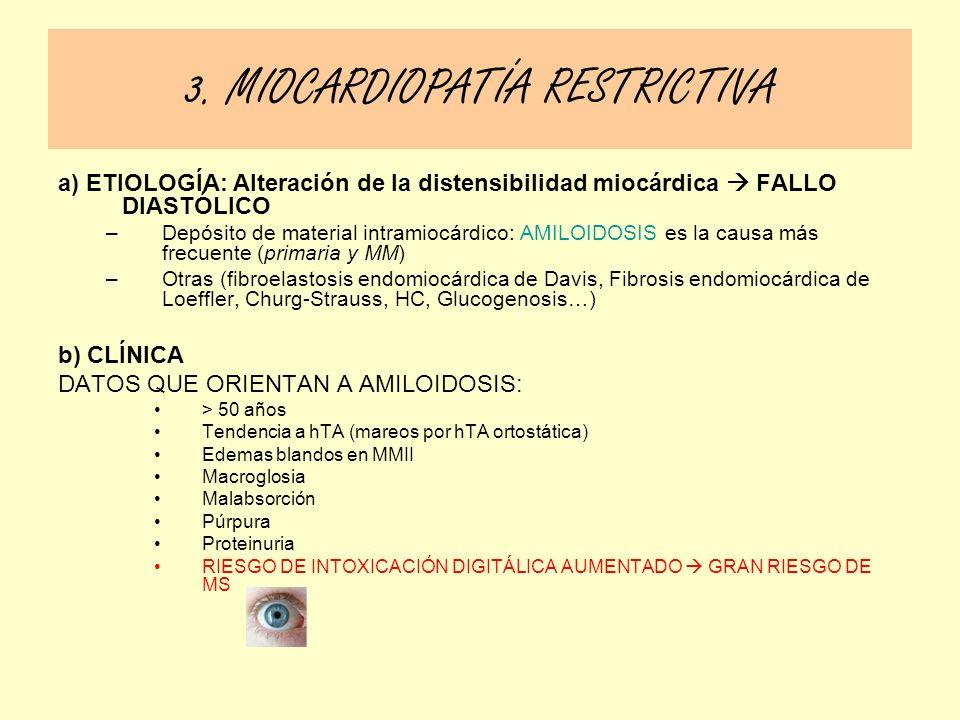 a) ETIOLOGÍA: Alteración de la distensibilidad miocárdica FALLO DIASTÓLICO –Depósito de material intramiocárdico: AMILOIDOSIS es la causa más frecuent