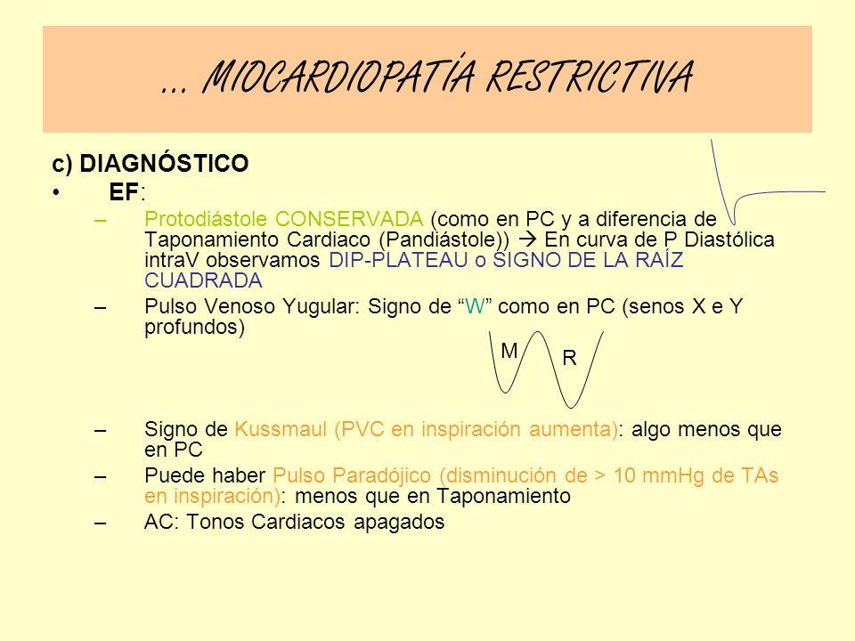 c) DIAGNÓSTICO EF: –Protodiástole CONSERVADA (como en PC y a diferencia de Taponamiento Cardiaco (Pandiástole)) En curva de P Diastólica intraV observ