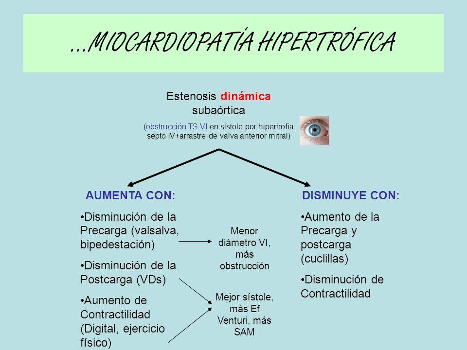 d) CLÍNICA (comienza a los 30-40 años (dif EAo) ) Casi ½ de los pacientes presentan TRIADA (como EAo) –Disnea –Angor –Síncope »NO OBSTRUCCIÓN EN ¼ de los pacientes.