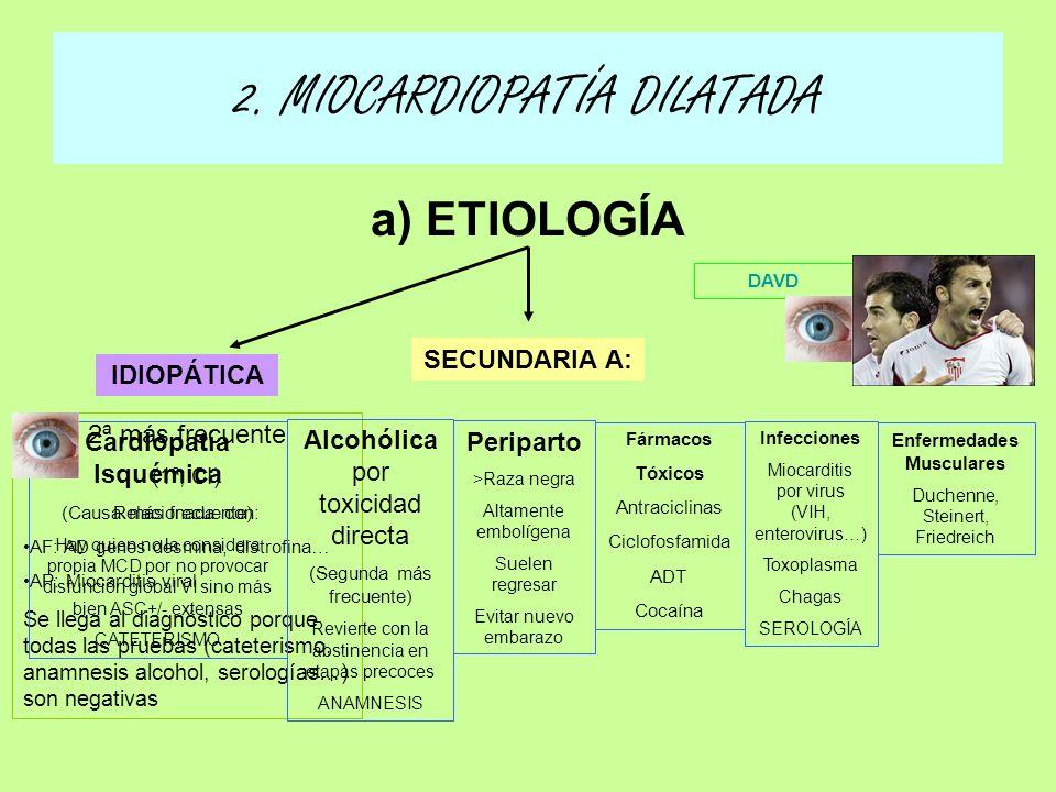 a) ETIOLOGÍA 2. MIOCARDIOPATÍA DILATADA IDIOPÁTICA SECUNDARIA A: 2ª más frecuente (1ª, CI) Relacionada con: AF: AD genes desmina, distrofina… AP: Mioc