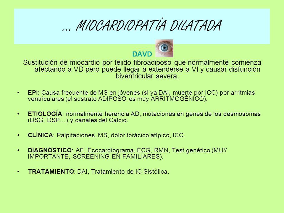 b) CLÍNICA: –ICC SISTÓLICA Global (Izquierda y derecha, por dilatación de todas las cavidades) –COMPLICACIONES: Embolias (ACO si encontramos trombo intracavitario y seguimiento de cerca) Arritmias (DAI) c) DIAGNÓSTICO: EF: Soplo de IMi secundaria, ritmo de galope Rx tórax: Cardiomegalia ECG: BCRIHH ECOCARDIOGRAMA: VI dilatado con FEVI deprimida d) TRATAMIENTO: IC Sistólica (REPASO!) –Aumentan SV: BB, IECAs, Ahorradores de potasio –Descompensados: Diuréticos del asa –Si trombo intracavitario: ACO –Si Arritmias: FA: Digital A.