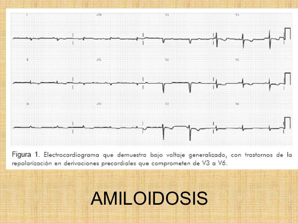 AMILOIDOSIS