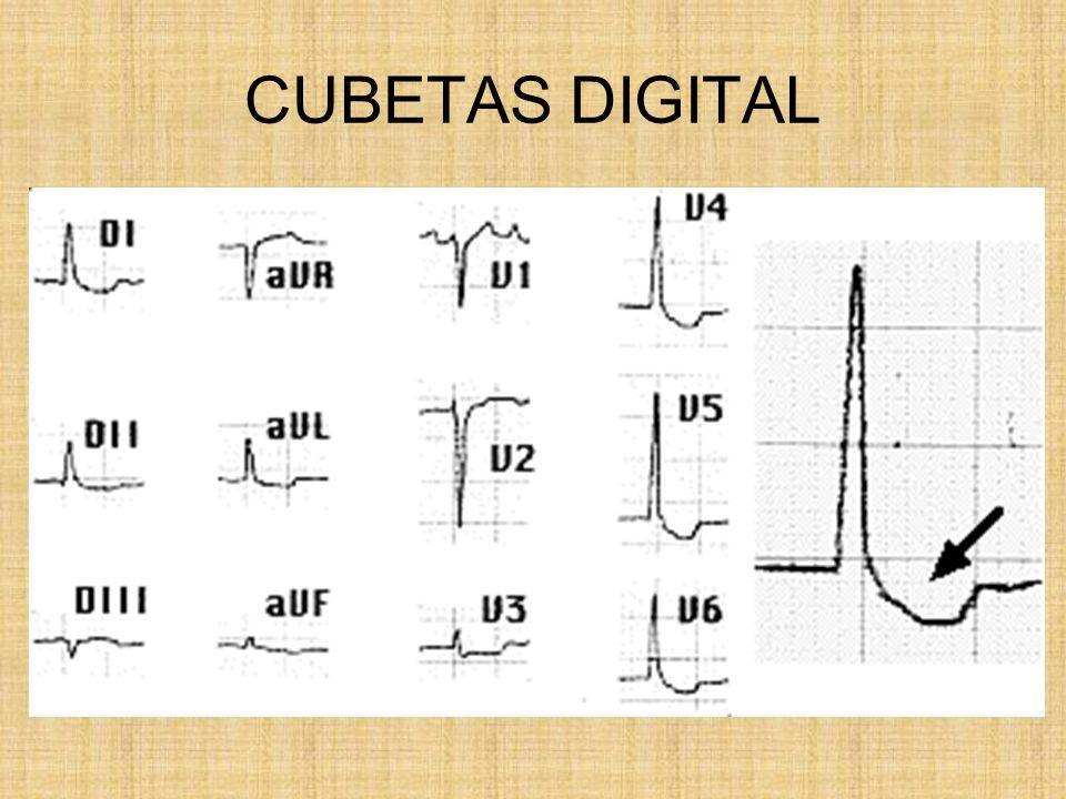 CUBETAS DIGITAL