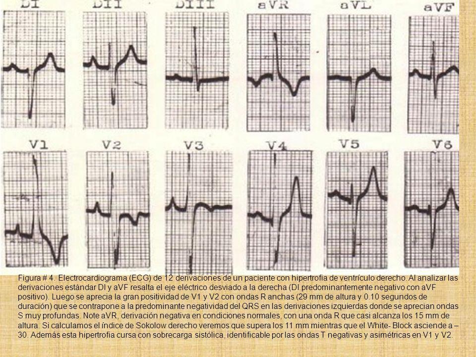 Figura # 4. Electrocardiograma (ECG) de 12 derivaciones de un paciente con hipertrofia de ventrículo derecho. Al analizar las derivaciones estándar DI