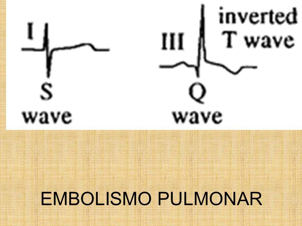EMBOLISMO PULMONAR