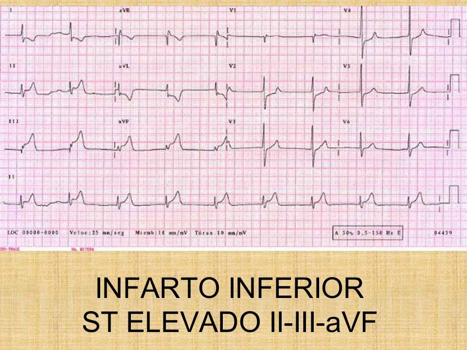 INFARTO INFERIOR ST ELEVADO II-III-aVF
