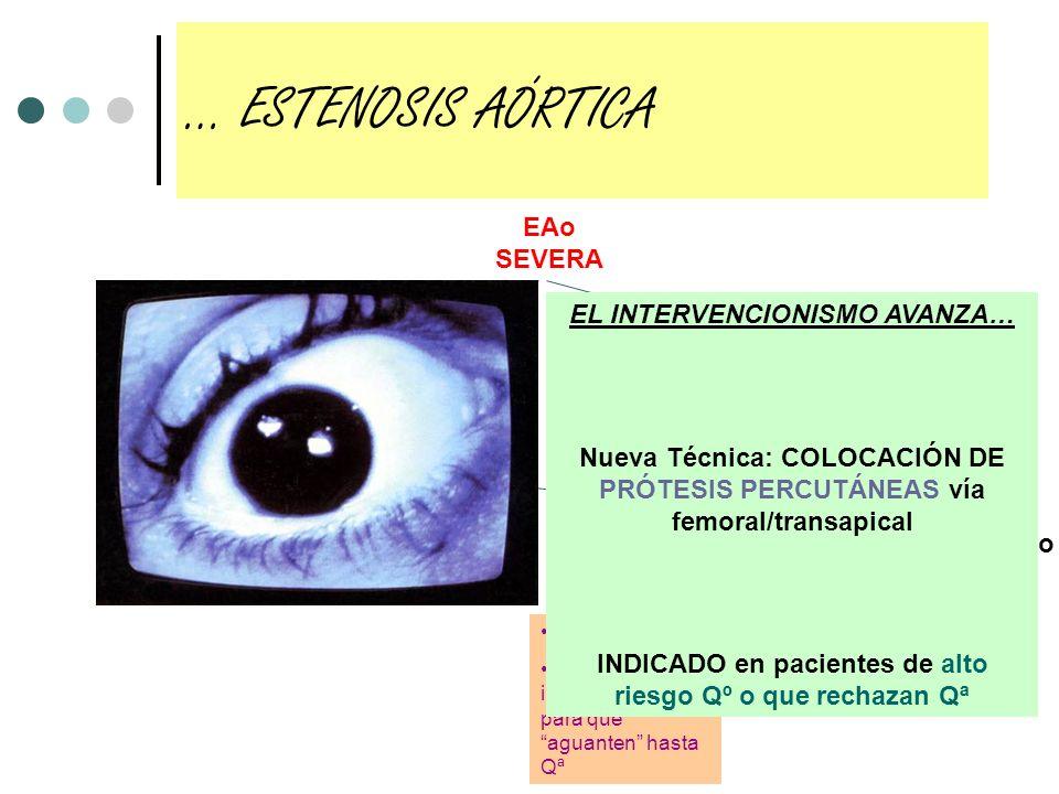 EAo SEVERA SintomáticaAsintomática Qª Gradiente > 70 FEVI < 50 (raro…) Niños con obstrucción grave Valvuloplastia percutánea Resto Tto médico Niños, s