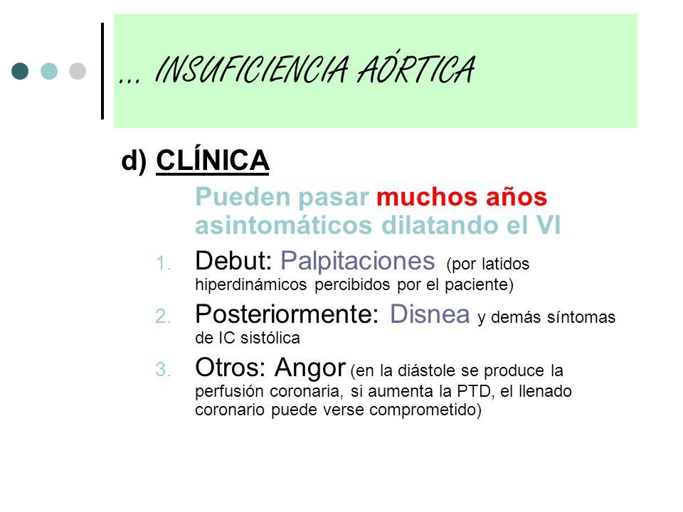 d) CLÍNICA Pueden pasar muchos años asintomáticos dilatando el VI 1. Debut: Palpitaciones (por latidos hiperdinámicos percibidos por el paciente) 2. P