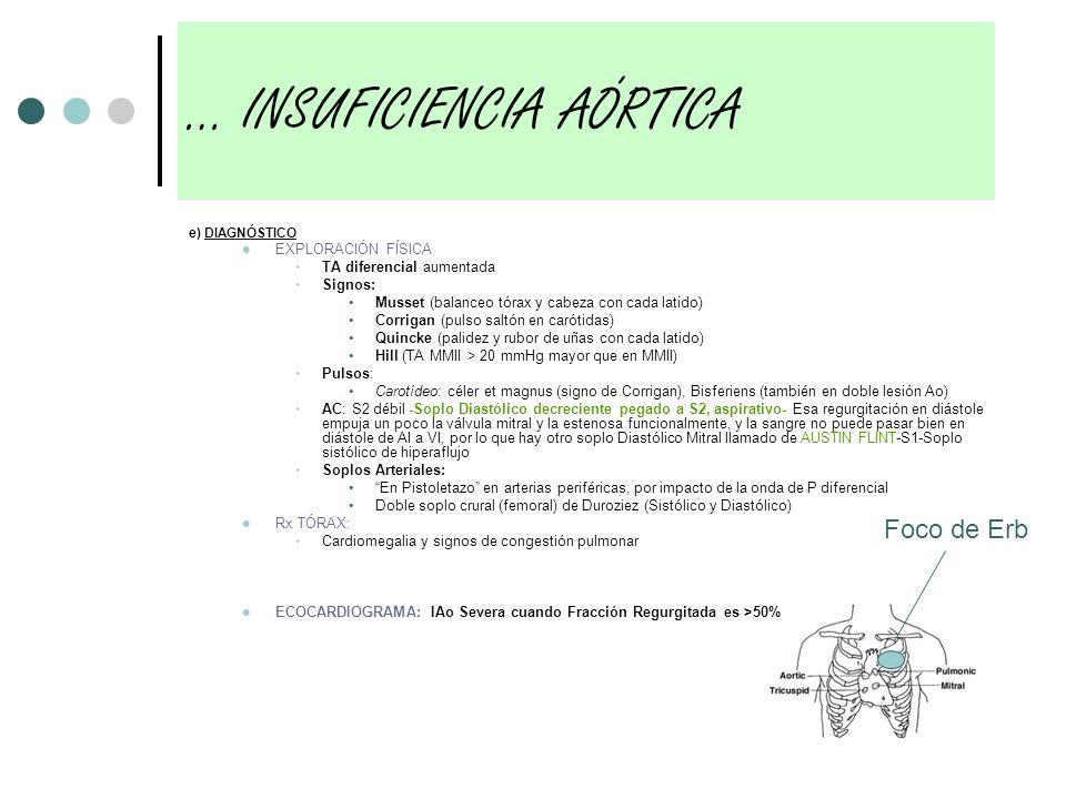 e) DIAGNÓSTICO EXPLORACIÓN FÍSICA TA diferencial aumentada Signos: Musset (balanceo tórax y cabeza con cada latido) Corrigan (pulso saltón en carótida