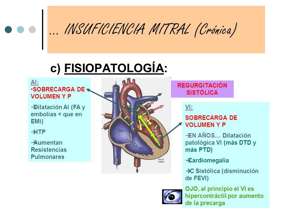 c) FISIOPATOLOGÍA: … INSUFICIENCIA MITRAL (Crónica) VI: SOBRECARGA DE VOLUMEN Y P EN AÑOS… Dilatación patológica VI (más DTD y más PTD) Cardiomegalia