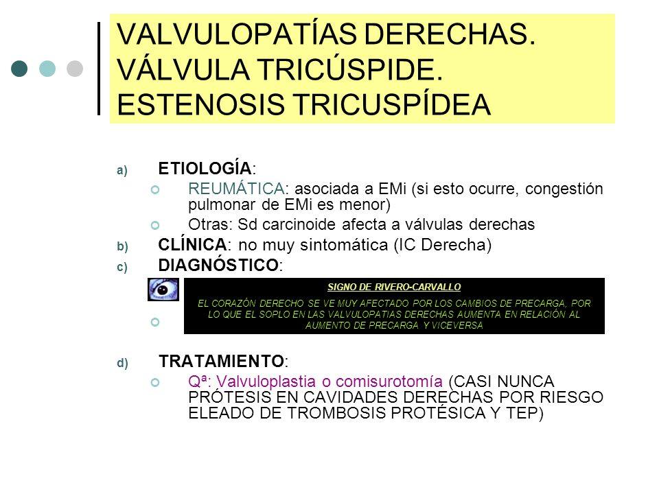 VALVULOPATÍAS DERECHAS. VÁLVULA TRICÚSPIDE. ESTENOSIS TRICUSPÍDEA a) ETIOLOGÍA: REUMÁTICA: asociada a EMi (si esto ocurre, congestión pulmonar de EMi