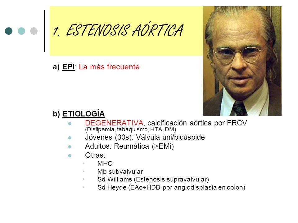 1. ESTENOSIS AÓRTICA a) EPI: La más frecuente b) ETIOLOGÍA DEGENERATIVA, calcificación aórtica por FRCV (Dislipemia, tabaquismo, HTA, DM) Jóvenes (30s