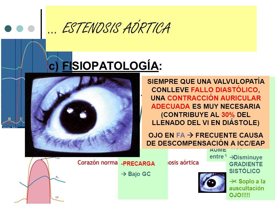 c) FISIOPATOLOGÍA: … INSUFICIENCIA MITRAL (Crónica) VI: SOBRECARGA DE VOLUMEN Y P EN AÑOS… Dilatación patológica VI (más DTD y más PTD) Cardiomegalia IC Sistólica (disminución de FEVI) OJO, al principio el VI es hipercontráctil por aumento de la precarga AI: SOBRECARGA DE VOLUMEN Y P Dilatación AI (FA y embolias < que en EMi) HTP Aumentan Resistencias Pulmonares REGURGITACIÓN SISTÓLICA
