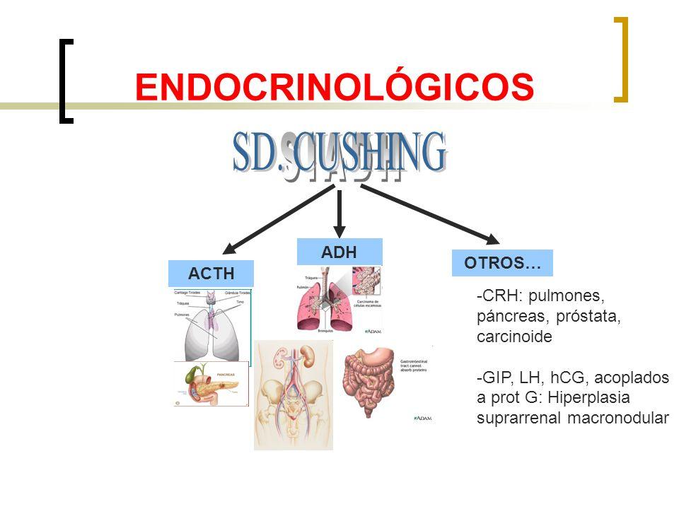 ENDOCRINOLÓGICOS ADH ACTH OTROS… -CRH: pulmones, páncreas, próstata, carcinoide -GIP, LH, hCG, acoplados a prot G: Hiperplasia suprarrenal macronodula