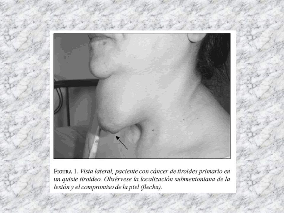 NOVEDADES ENDOCRINO PÁGINA 96: La tiroiditis crónica con tirotoxicosis transitoria es 3 veces más frecuente en mujeres con Diabetes Mellitus tipo 1. P