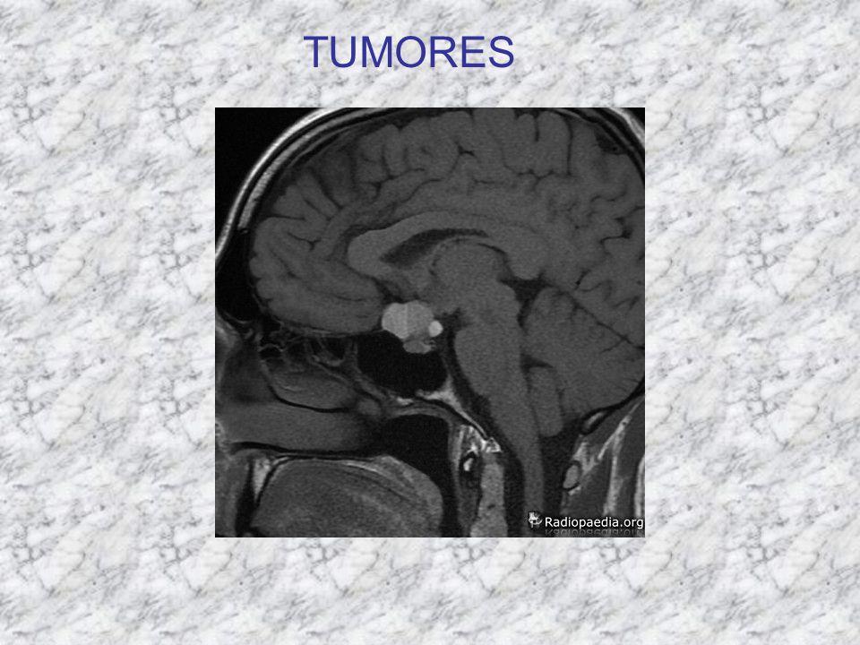 TIPO DE TUMORCARACTERÍSTICA S MARCADORESDISEMINACIÓN SEMINOMAS (gonocitos) Tumor primario más frecuente (>50%) Curso clínico indolente Radiosensible No tiene marcadores diagnósticos ni pronósticos.