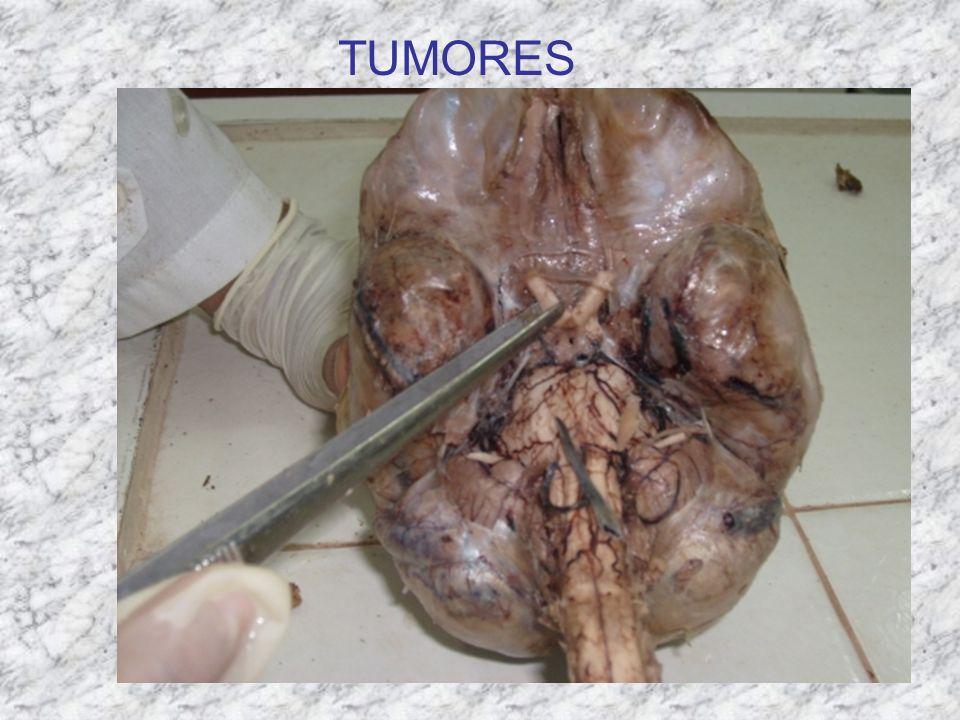 NOVEDADES ENDOCRINO PÁGINA 96: La tiroiditis crónica con tirotoxicosis transitoria es 3 veces más frecuente en mujeres con Diabetes Mellitus tipo 1.