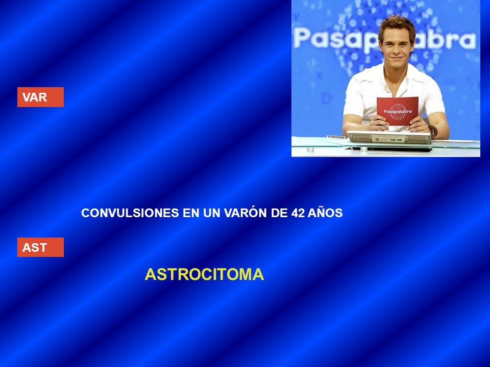 VAR AST CONVULSIONES EN UN VARÓN DE 42 AÑOS ASTROCITOMA