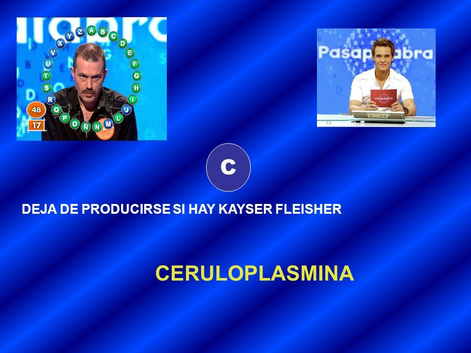 C DEJA DE PRODUCIRSE SI HAY KAYSER FLEISHER CERULOPLASMINA
