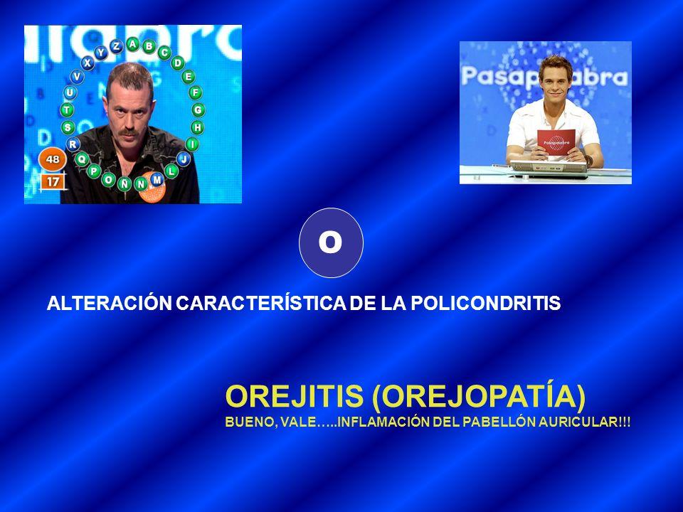 O ALTERACIÓN CARACTERÍSTICA DE LA POLICONDRITIS OREJITIS (OREJOPATÍA) BUENO, VALE…..INFLAMACIÓN DEL PABELLÓN AURICULAR!!!