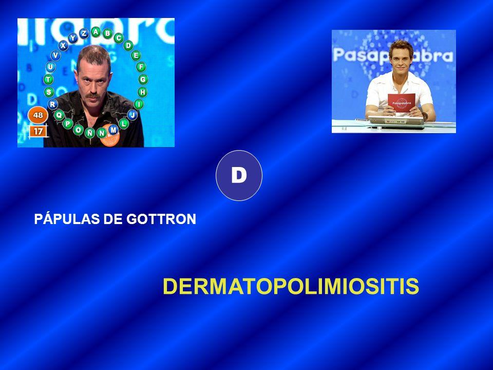 D PÁPULAS DE GOTTRON DERMATOPOLIMIOSITIS