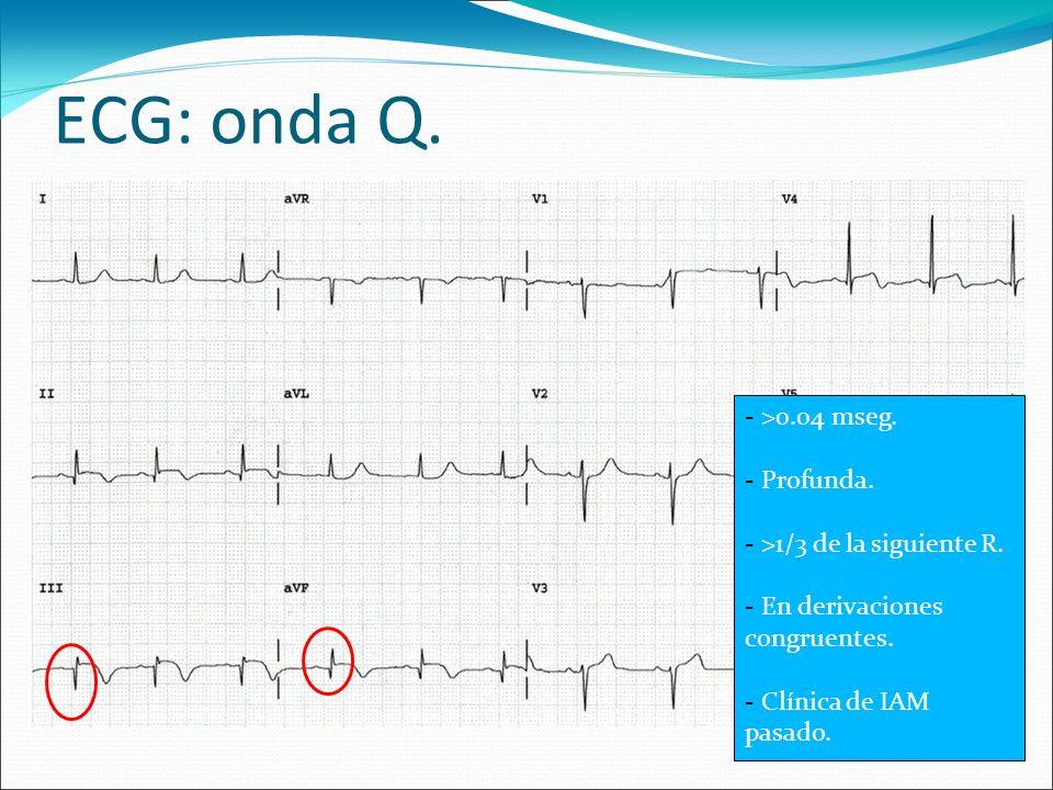 ECG: onda Q. - >0.04 mseg. - Profunda. - >1/3 de la siguiente R. - En derivaciones congruentes. - Clínica de IAM pasado.